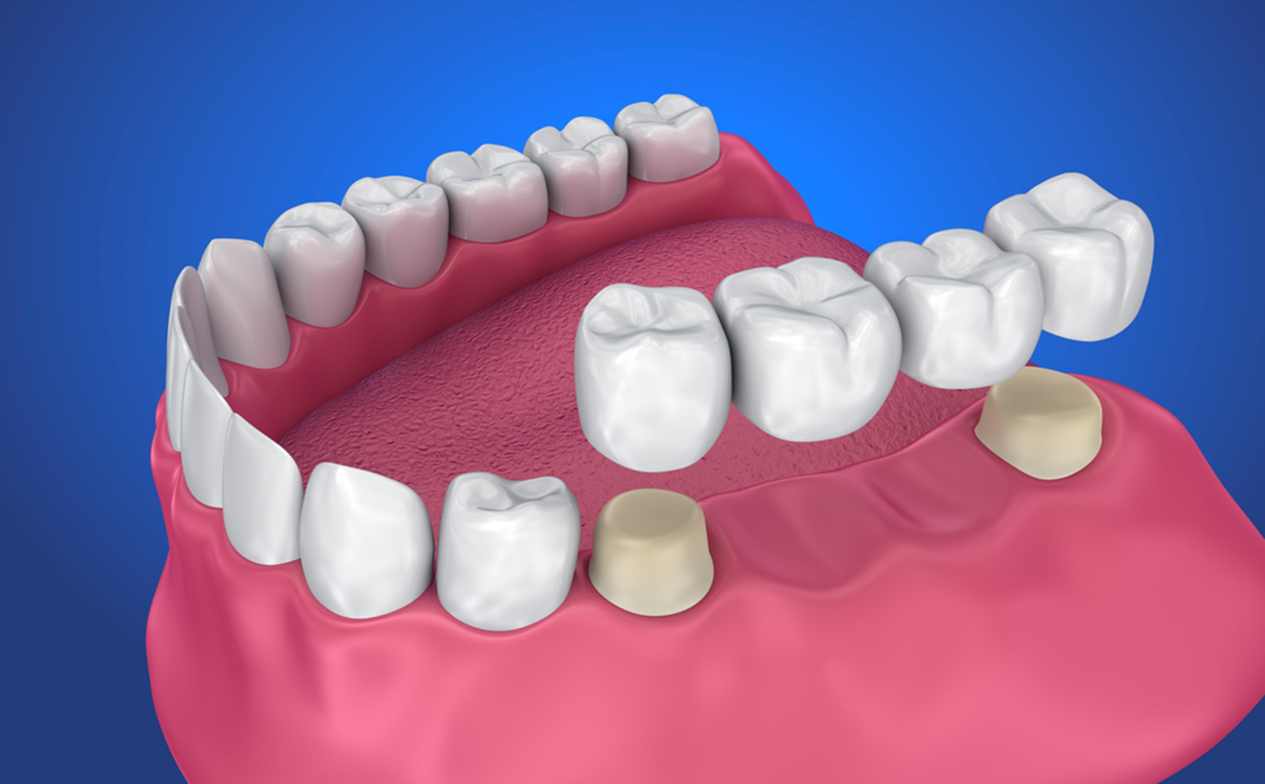 dental-bridge-winnipeg-north-dental