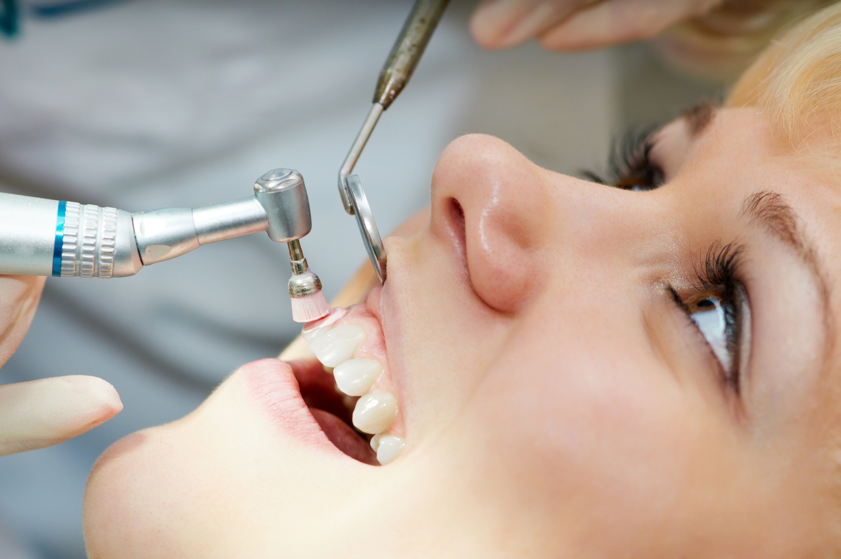 dental-cleaning-at-winnipeg-dental-clinic