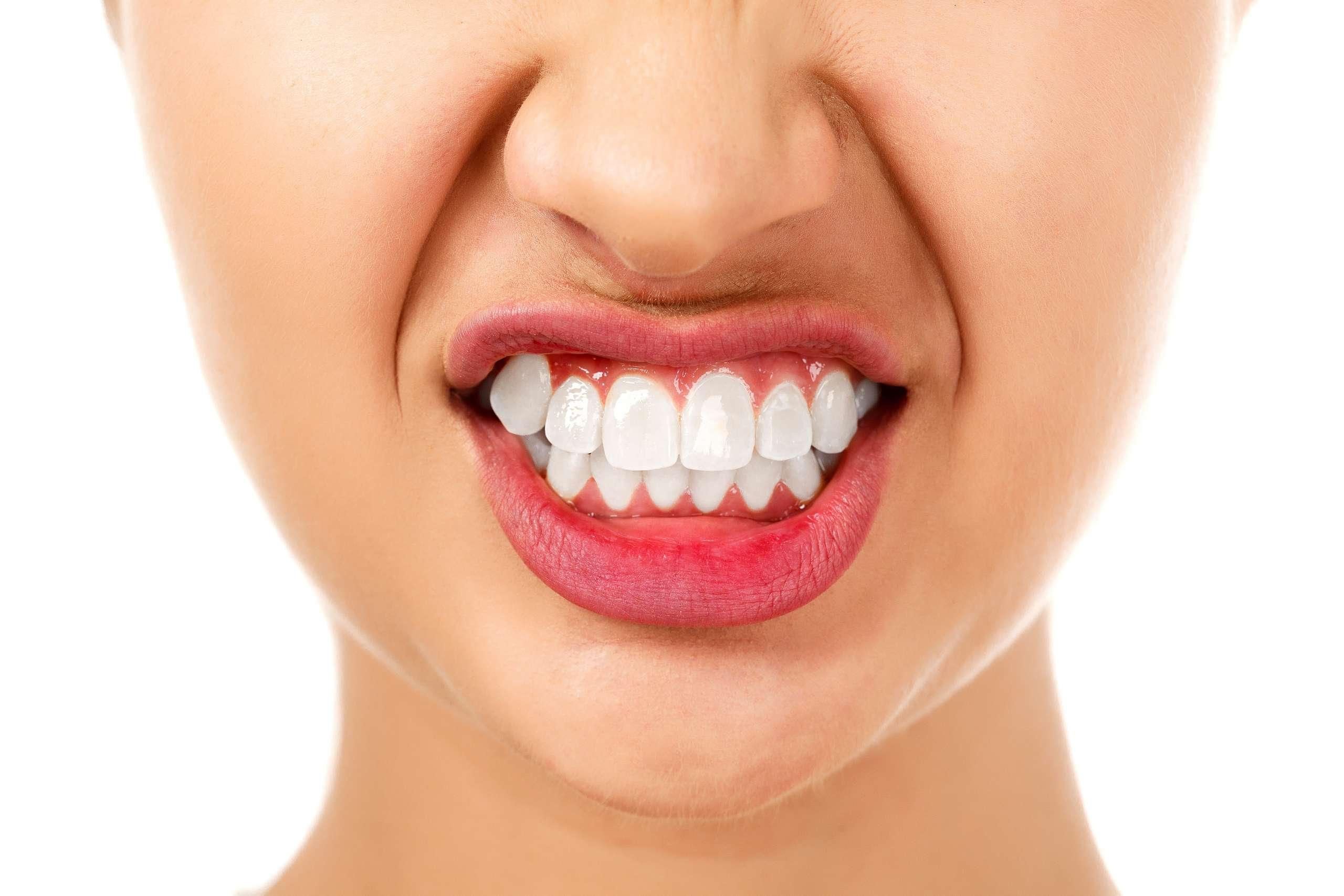 teeth-grinding-winnipeg-dental-clinic-1